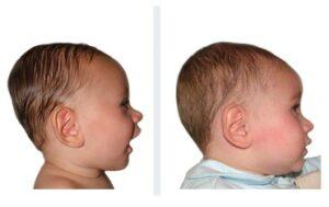 Brachycéphalie bébé de 8 mois