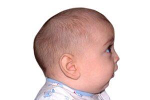 bébé avec craniosténose
