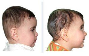 bébé avec brachycéphalie