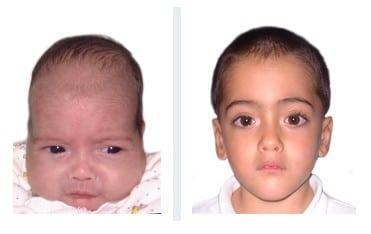 bébé atteint de scaphocephaly