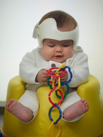 bébé avec plagiocéphalie i doc band