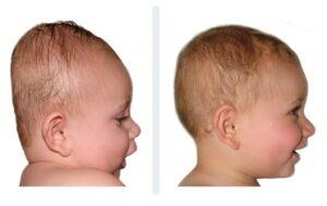 bébé brachycéphalie