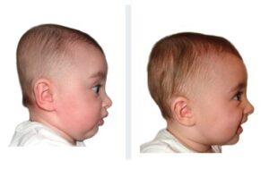 6 mois bébé brachycéphalie
