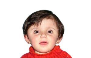 Brachycéphalie bilatérale 20 mois