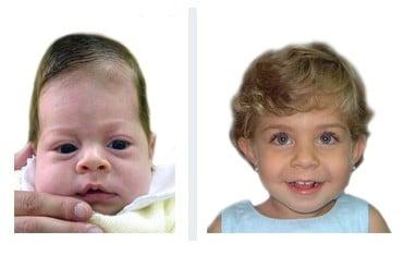 bébé scaphocephaly