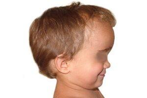 Scaphocéphalie non opérée enfant